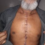 Post CABG chest wound After
