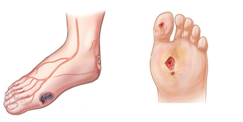 Diabetic Plantar Ulceration